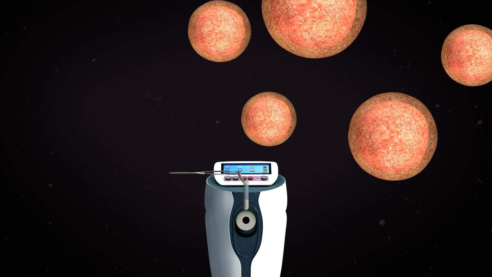 Rich Vaughn Blog: Legal Time Limits on Cryopreserved Embryos Creates New Biological Time Clock